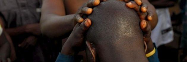 Mozambico, caccia agli uomini calvi
